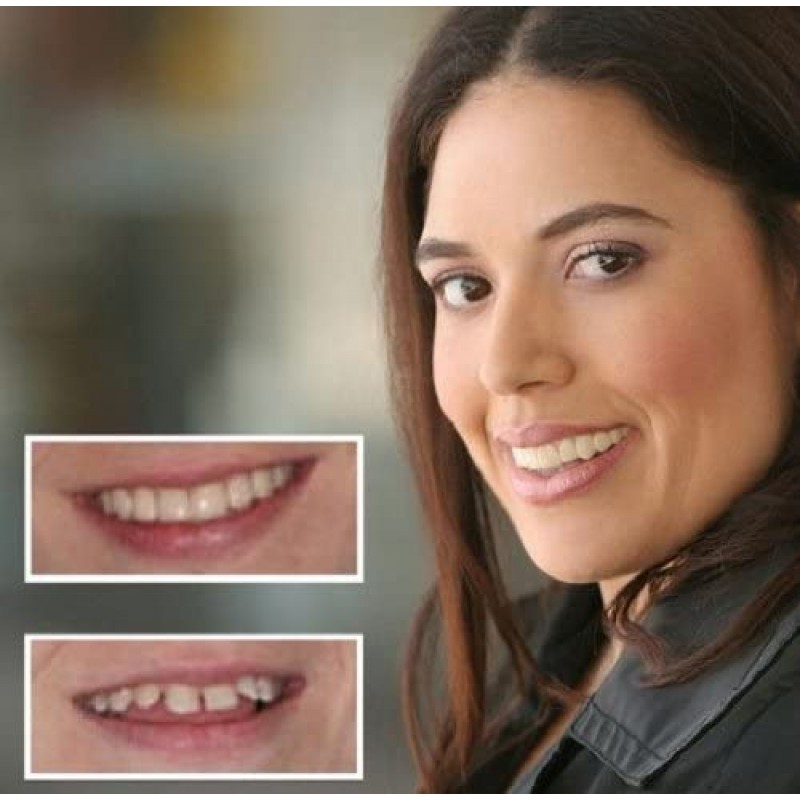Dental prostheses Cosmetic Teeth 1 Pack. (Small, Bleached) Uppers Only- Arrives Flat. Fit at Home Do it Yourself Smile Makeover!